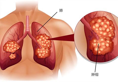 肺癌疼痛的最佳治疗方法是什么?