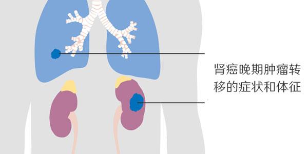 肾癌晚期转移症状和体征表现
