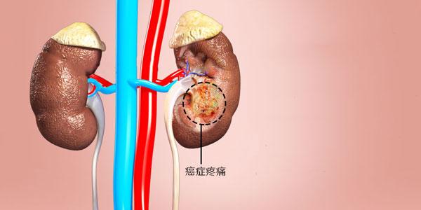 肾癌疼痛的控制治疗方案方法手术和药物