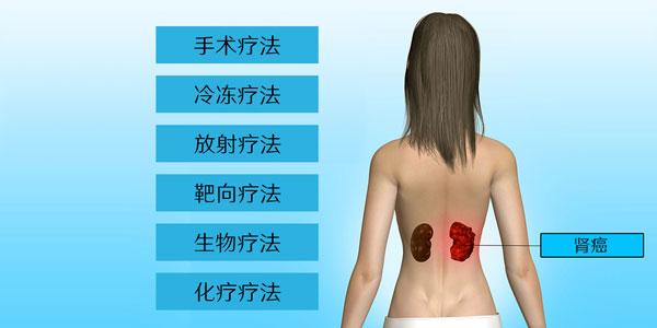 肾癌治疗方法手术冷冻放射靶向生物化疗的副作用
