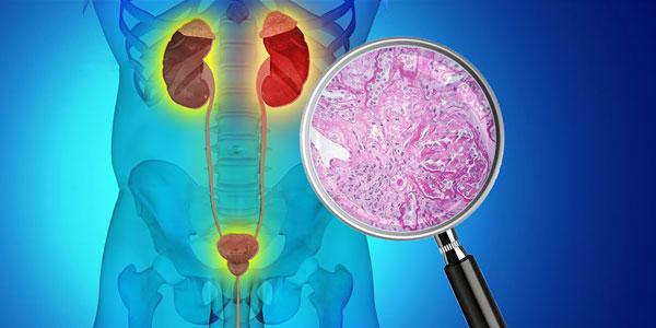 肾淀粉样变性的原因症状及治疗