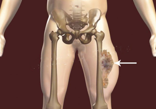 尤文氏肉瘤治疗方法及疗程时间和副作用会导致不孕吗治愈率