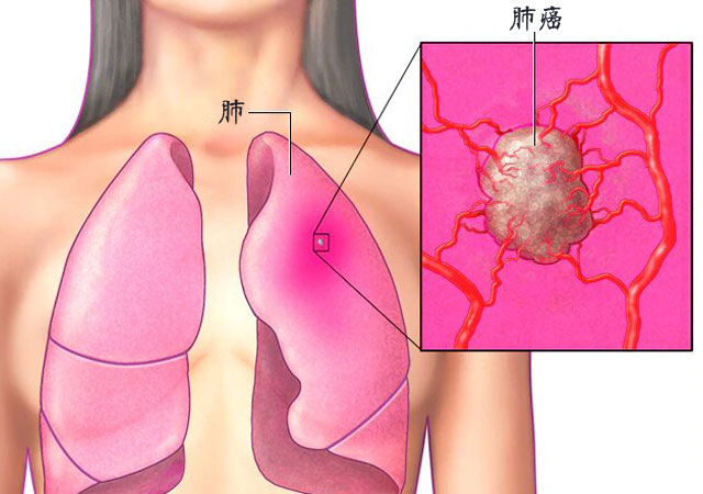 9大肺癌早期症状表现前兆有哪些