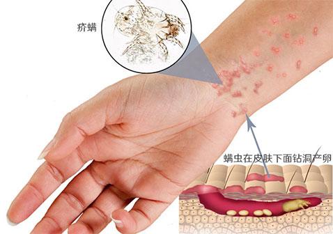 疥疮是什么样子疥虫感染初期小红点和爬过的痕迹症状图片
