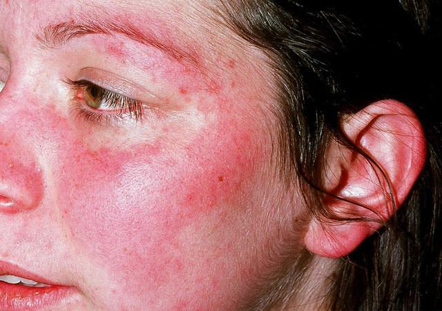 牛皮癣与红斑狼疮有什么区别其症状图片治疗方法
