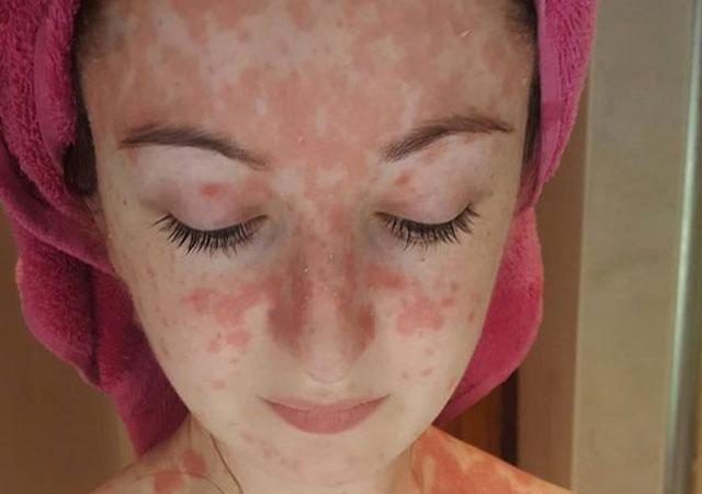 面部银屑病类型什么原因引起的怎么办治疗好