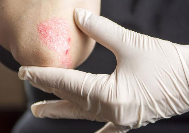 3种方法区分湿疹和牛皮癣银屑病的区别真实对照图解