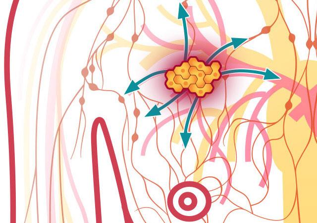 乳腺癌4期晚期怎么治疗能治愈吗能活多久?