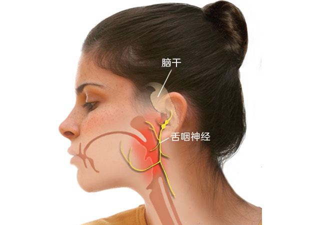 咽喉疼痛什么是舌咽神经痛的症状原因治疗方法药物图解