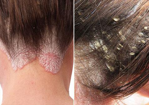 如何区分头皮屑和头皮牛皮癣银屑病真实对照图解