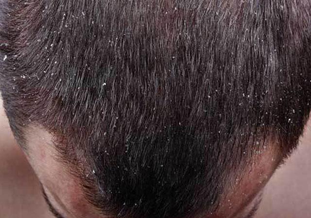 头部银屑病如何治疗_怎么识别头皮银屑病是什么样的图片症状治疗并发症