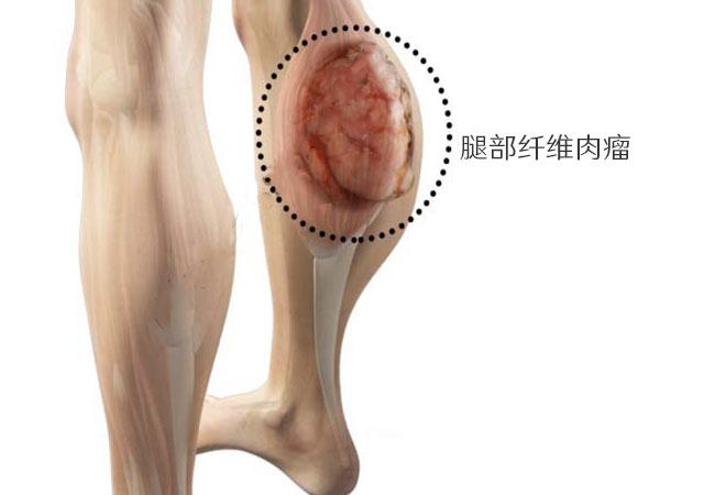 什么是纤维肉瘤的症状原因分期及治疗方法