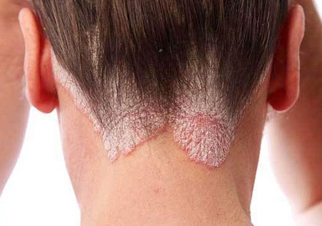 怎么识别头皮银屑病是什么样的图片症状治疗并发症