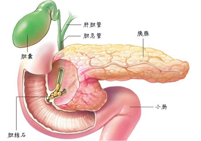 胰腺炎严重吗会导致死亡吗怎么治疗