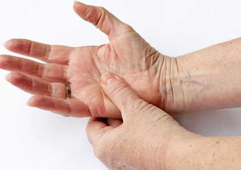 类风湿性关节炎的早期症状图片及并发症