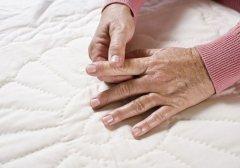 手指类风湿关节炎最早期症状前兆图片