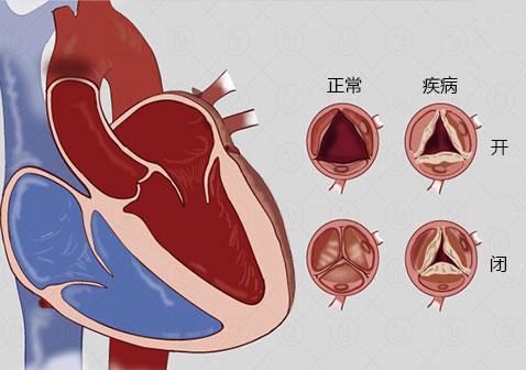 什么是风湿性心脏病(附图片)