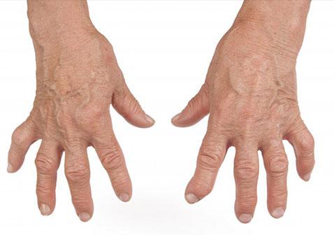 什么是类风湿性关节炎(附图片)