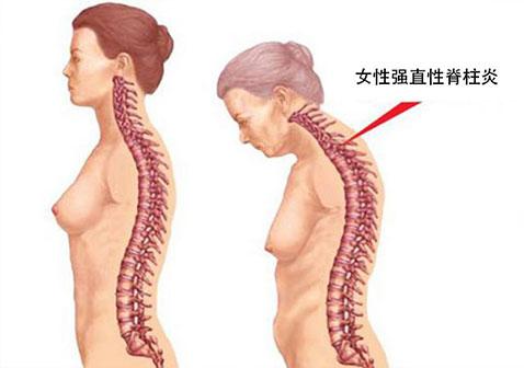 女性强直性脊柱炎症状表现有哪些图片怎么治疗效果更好